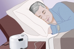 Attune Sleep Apnea System