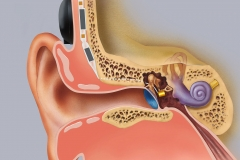 Symphonix Implantable Hearing Aid